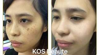 Freckle treatment