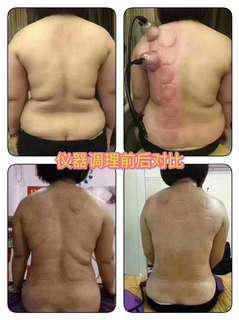 減肥 注氧 拔罐 穴位 胸部提升 局部減肥