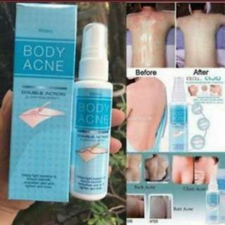 Dry up body acne