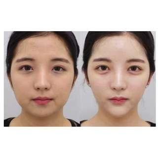 韩国蛋白线雕 | EX Beauty