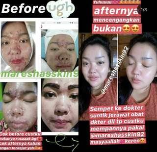 maresha skincare