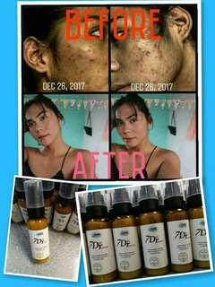 7 Days Recovery Whitening Facial Serum