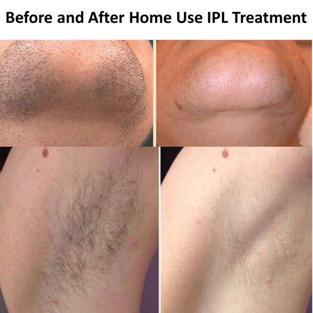 Fast Result Home Use IPL Machine (Result Within 1-3 Treatments)