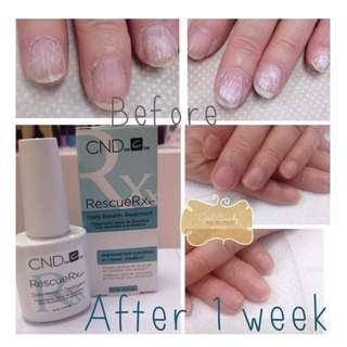 🚚 CND NAIL RESCUE RXX TREATMENT REPAIRS DAMAGED/WHITE SPOT/PEELING NAILS 3.7ML X 3bottles