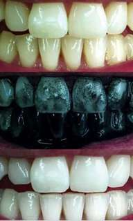 TEETH WHITENING CHARCOAL (INSTOCK)