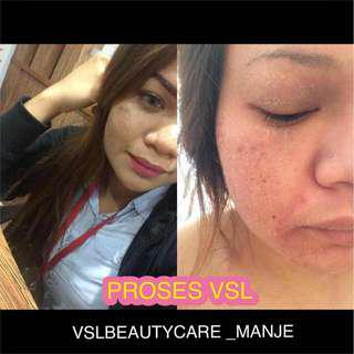 Vsl beauty care
