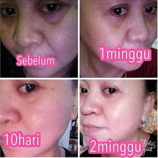 Paket perawatan wajah yg bikin glowing & kinclong