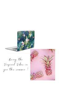 Tropical Vibes - Macbook Hard Case