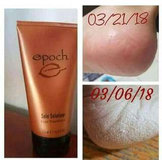 Epoch sole solution