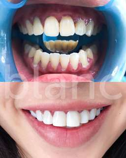 Aesthetic veneers