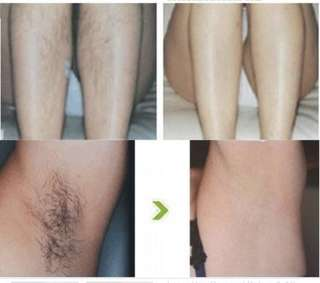 🚚 IPL - underarm hair removal @18