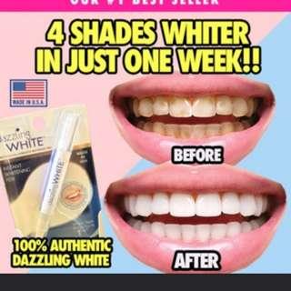 Teeth Whitening dazzling white