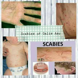 Scabies ointment