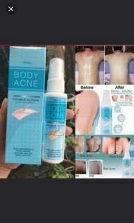 Body back acne treatment