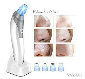 Vassoul Comedo Suction Microdermabrasion Diamond Machine Blackhead Removal, Electronic Facial Pore Cleaner Acne Remover , Utilizes Vacuum Extraction Tool Skin Care ( White)