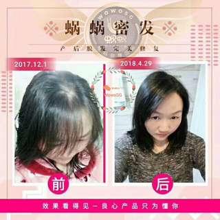 Wowo Ginger Shampoo ( Hair loss, dandruff, sensitive)