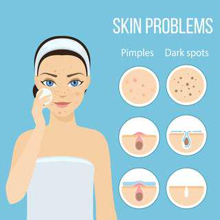 Cure Acne At Home