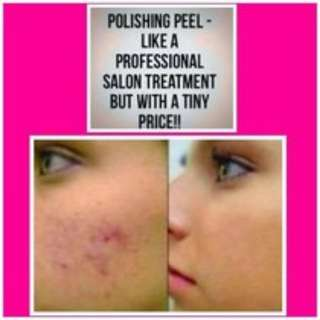 Why Not Enjoy A Microdermabrasion Clinical Visit At Home