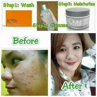 Omni Kojic Soap,Toner and White Cream