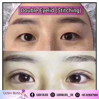 Double Eyelid (Stitching)