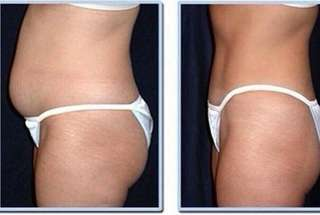 CoolSculpting, Fat Freezing + Liposonix