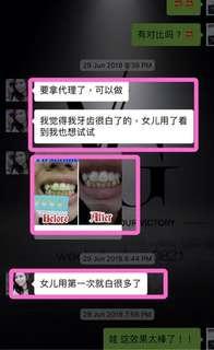 Customer feedback Viaila Teeth Whitening Gadget