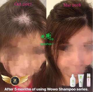 Live testimonies- wowo hair care products (original)