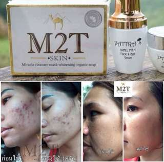 M2t Skin Organic Camel Milk Soap ( Acne Treatment / Natural Whitening )