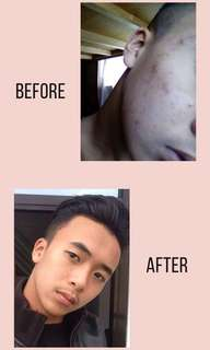 PIMPLES REMOVER 100ML