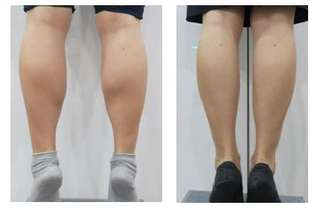 Botox Calf reduction