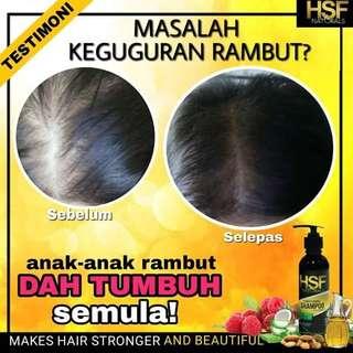 🚚 Hsf naturals shampoo + HSF Serum (instock)