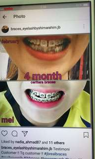 🚚 real braces