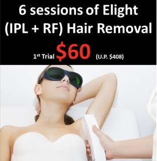 6 sessions of IPL underarm Hair Removal