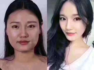 Botox jaw slimming瘦脸
