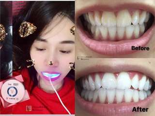 🔥SALES NOW🔥Viaila Teeth Whitening Kit