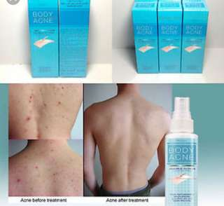 Acne spray (body)