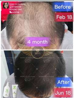 100% Authentic Wowo Pure Ginger Anti Hair Loss Shampoo/ Nutrition Hair Mask
