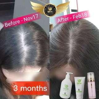 Wowo Pure Ginger Shampoo/ Hair Mask / Hair Essential Oil