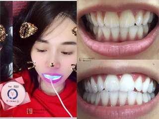 Cold Light Technology Teeth Whitening Kit