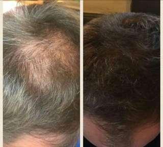 Nutriol Shampoo Hair Grower