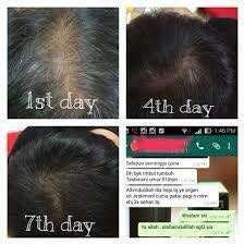Feryal Hair Tonic