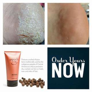 Epoch sole solution treatment