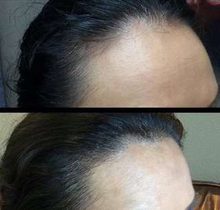 Hairline embroidery (both side)