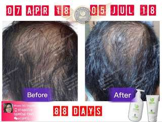 100% _Authentic Wowo Pure Ginger Anti Hair Loss Shampoo & Nutrition Hair Mask