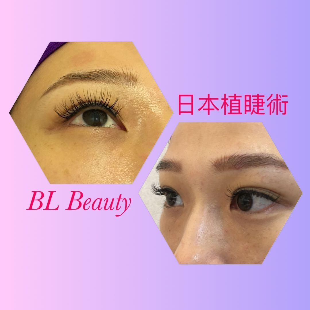日本植睫術