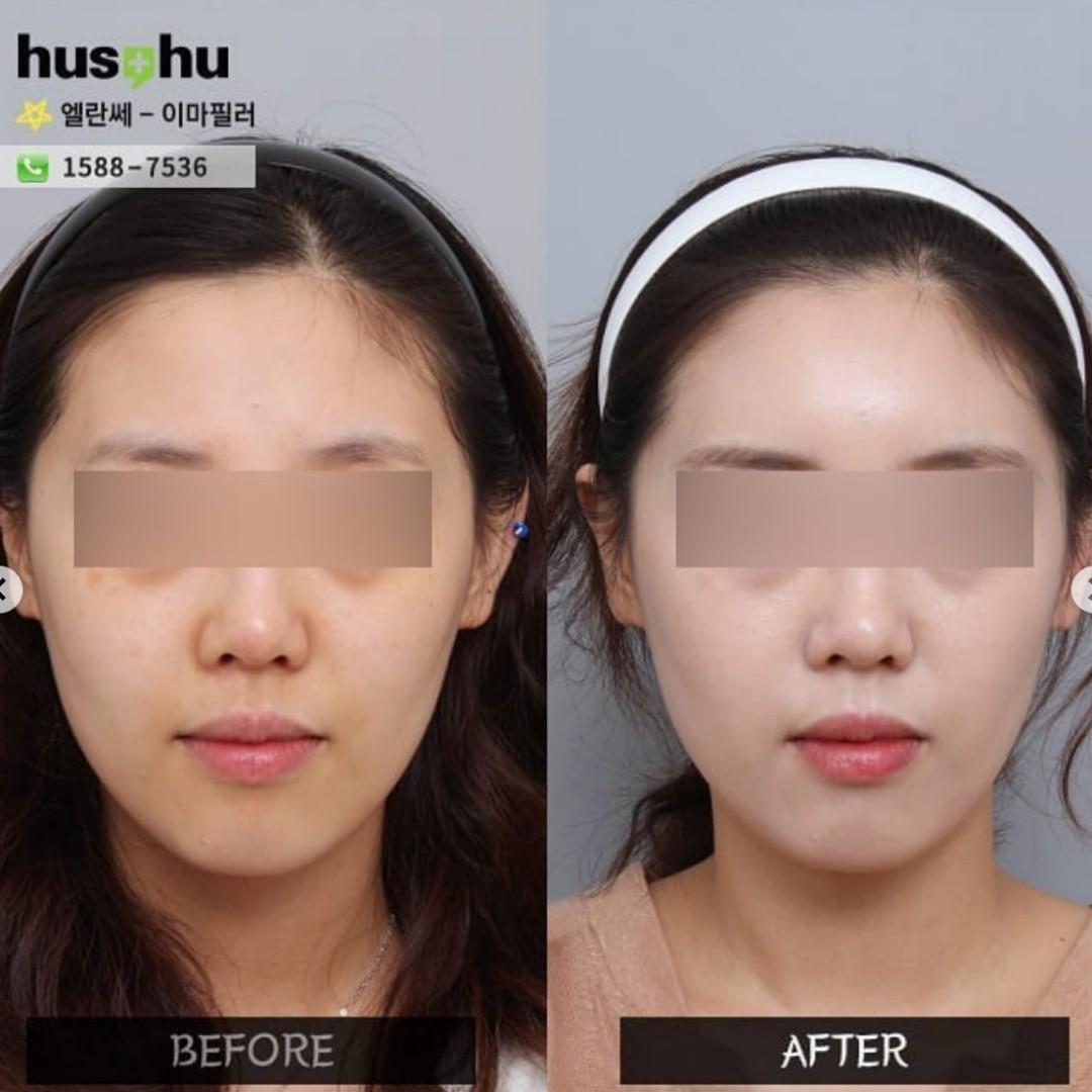 Broker] Korean Forehead filler (Ellanse), Health & Beauty