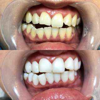 Nano Teeth whitening treatment