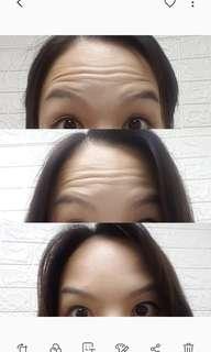 肉毒桿菌注射 去額頭紋 眉心紋