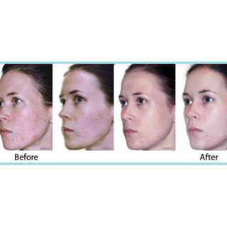 Facial Peel That Works - No Recovery Time Needed