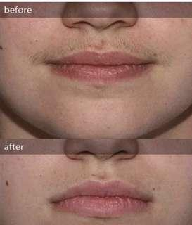 Ipl upper lip